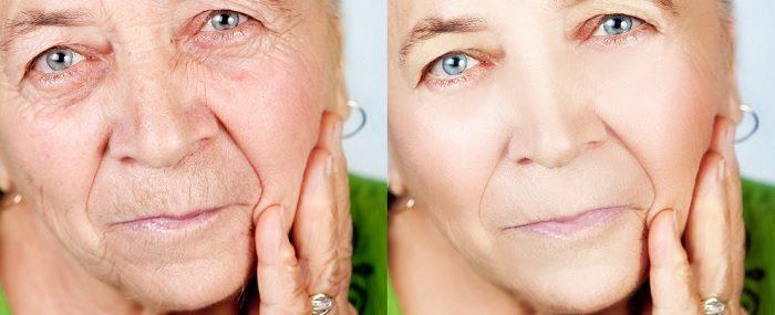Yaşlanmanın Etkileri Ortadan Kaldırıldı!